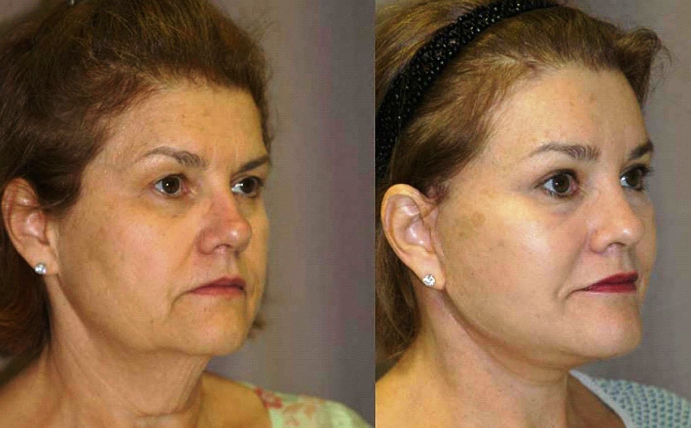 58 year old face lift brow lift eyelids and chin augmentation oblique view, 6 month follow-up oblique view