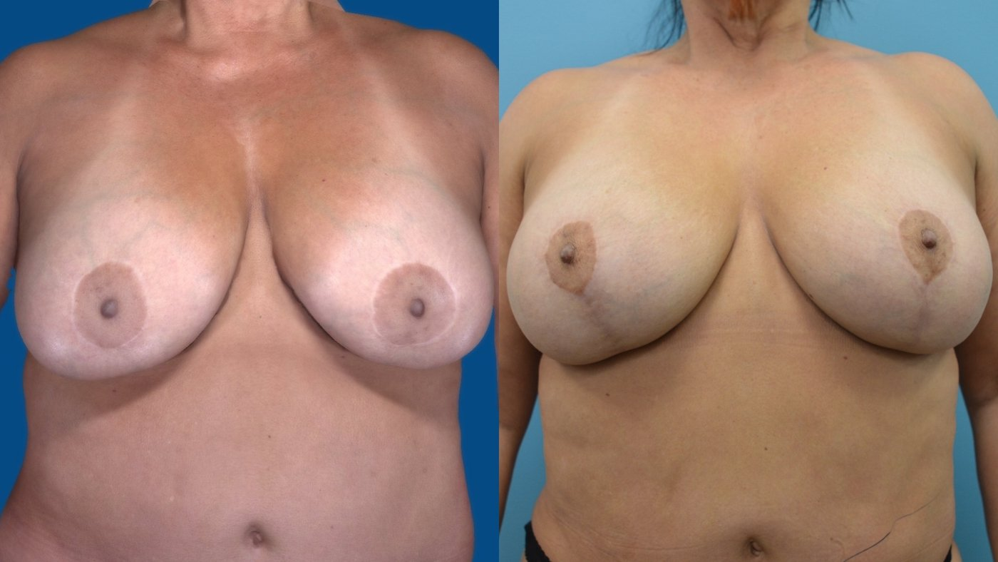 58-year-old 13 months after change of implants, breast reduction sup. pedicle lift, front