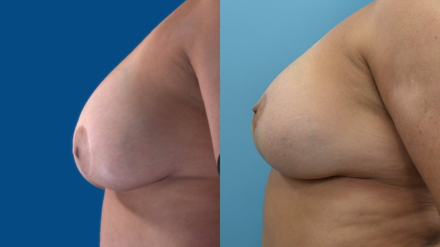 58-year-old 13 months after change of implants, breast reduction sup. pedicle lift, left side
