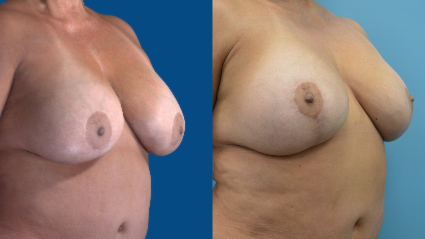 58-year-old 13 months after change of implants, breast reduction sup. pedicle lift, right oblique