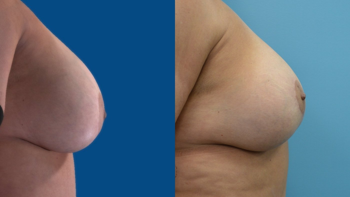 58-year-old 13 months after change of implants, breast reduction sup. pedicle lift, right side
