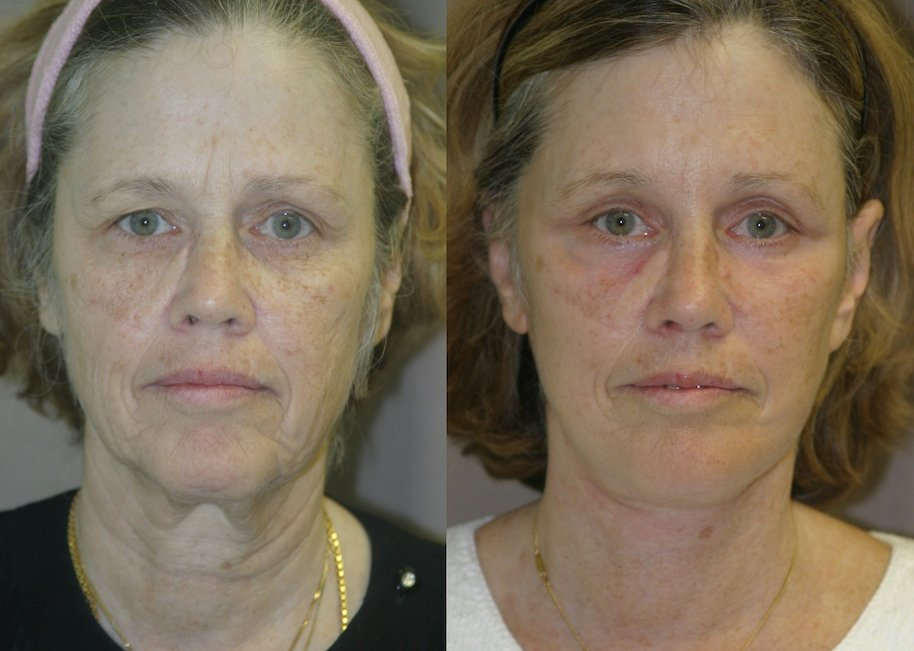 59-year-old, 5 months after facelift, submental platysmaplasty, endobrow, upper lower eyelids, chin augmentation, front view