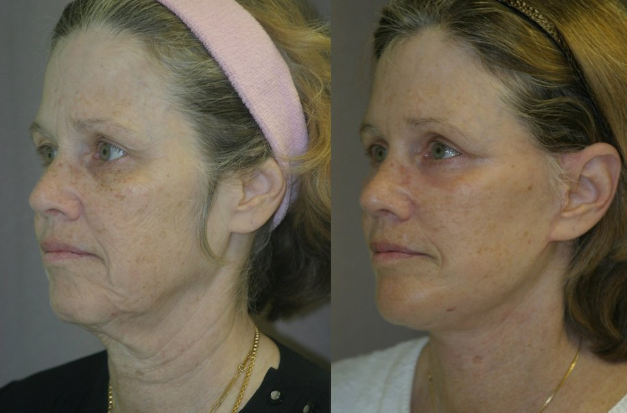 59-year-old, 5 months after facelift, submental platysmaplasty, endobrow, upper _ lower eyelids, chin augmentation left oblique view