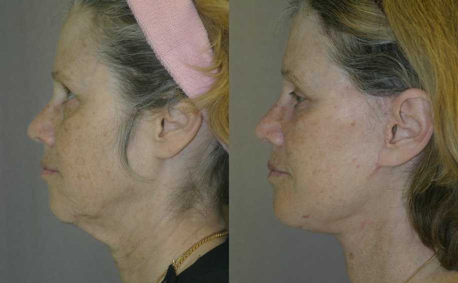 59-year-old, 5 months after facelift, submental platysmaplasty, endobrow, upper lower eyelids, chin augmentation left side view
