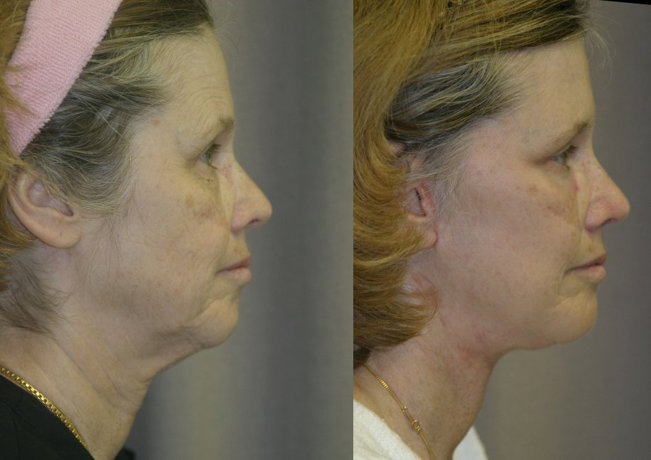 59-year-old, 5 months after facelift, submental platysmaplasty, endobrow, upper lower eyelids, chin augmentation, right side view