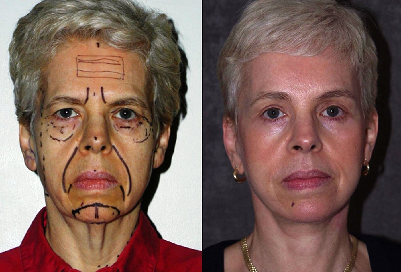 59 year old face lift brow lift eyelids with chin implant, one year follow-up front view