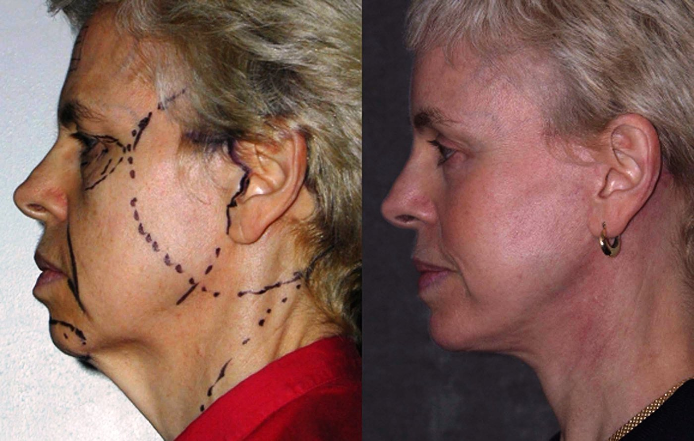 59 year old face lift brow lift eyelids with chin implant, one year follow-up side view