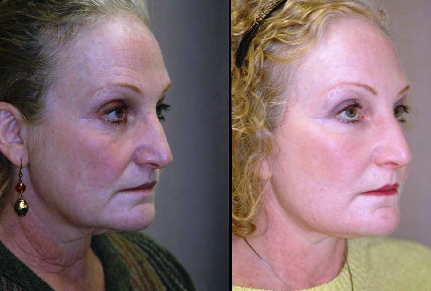 59 year-old, face-lift with submental plication of platysma muscles, laser lower eyelids and lateral canthoplasty, oblique view