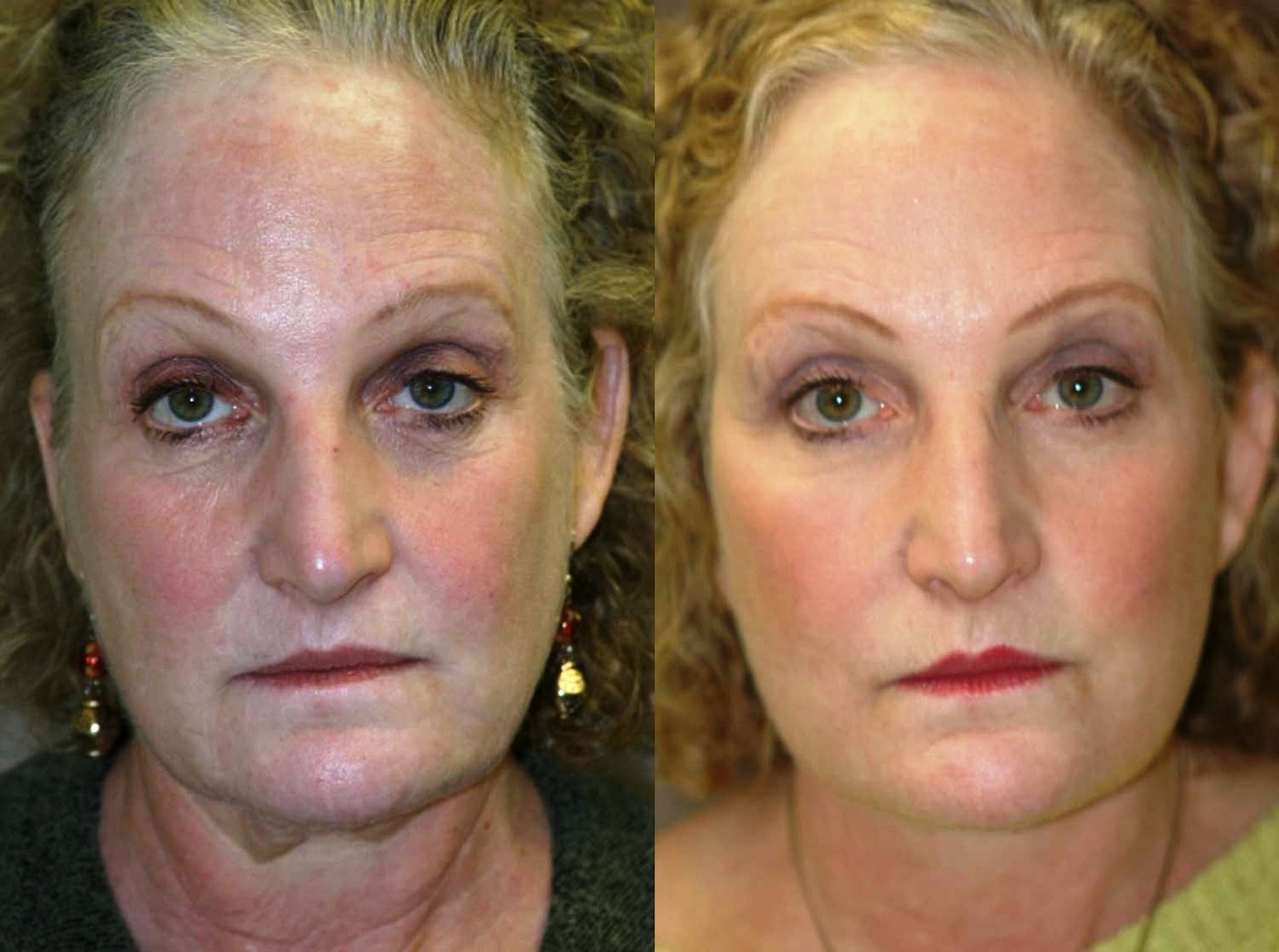59 year-old, face-lift with submental plication of platysma muscles, laser lower eyelids and lateral canthoplasty front view
