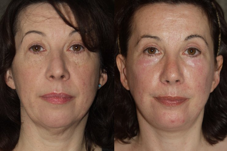 59-year-old, facelift, submental platysmaplasty, endobrow, upper _ lower eyelids, chin augmentation, rhinoplasty, 2 years after surgery, front view
