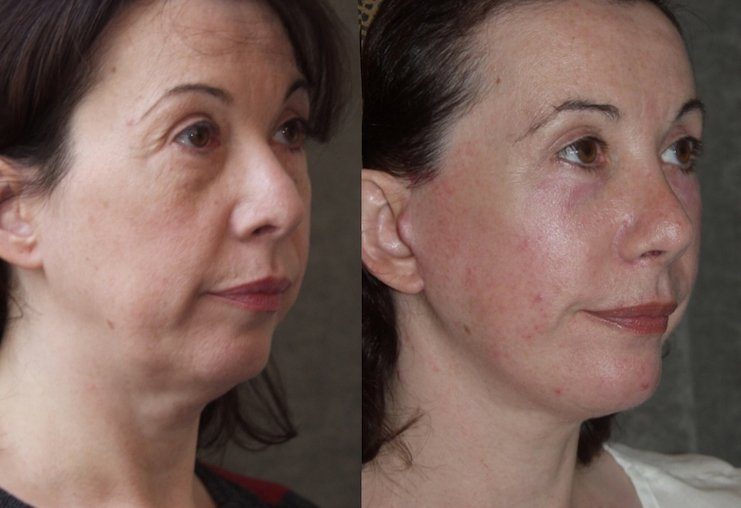 59-year-old, facelift, submental platysmaplasty, endobrow, upper _ lower eyelids, chin augmentation, rhinoplasty, 2 years after surgery, right oblique view