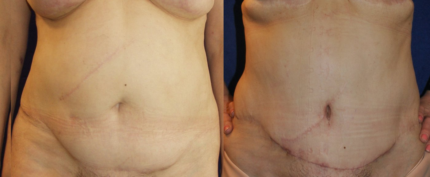60-year-old abdominoplasty, Kocher scar,  2 years after, one month after scar revision, front view
