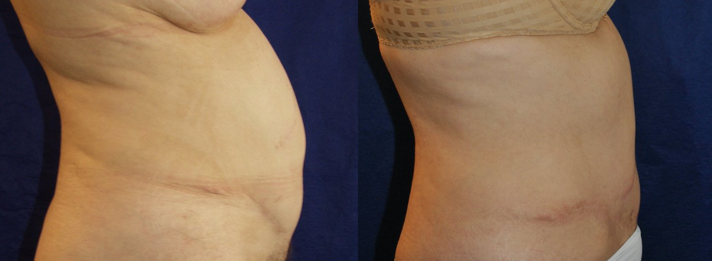 60-year-old abdominoplasty, Kocher scar,  4 months after, side view