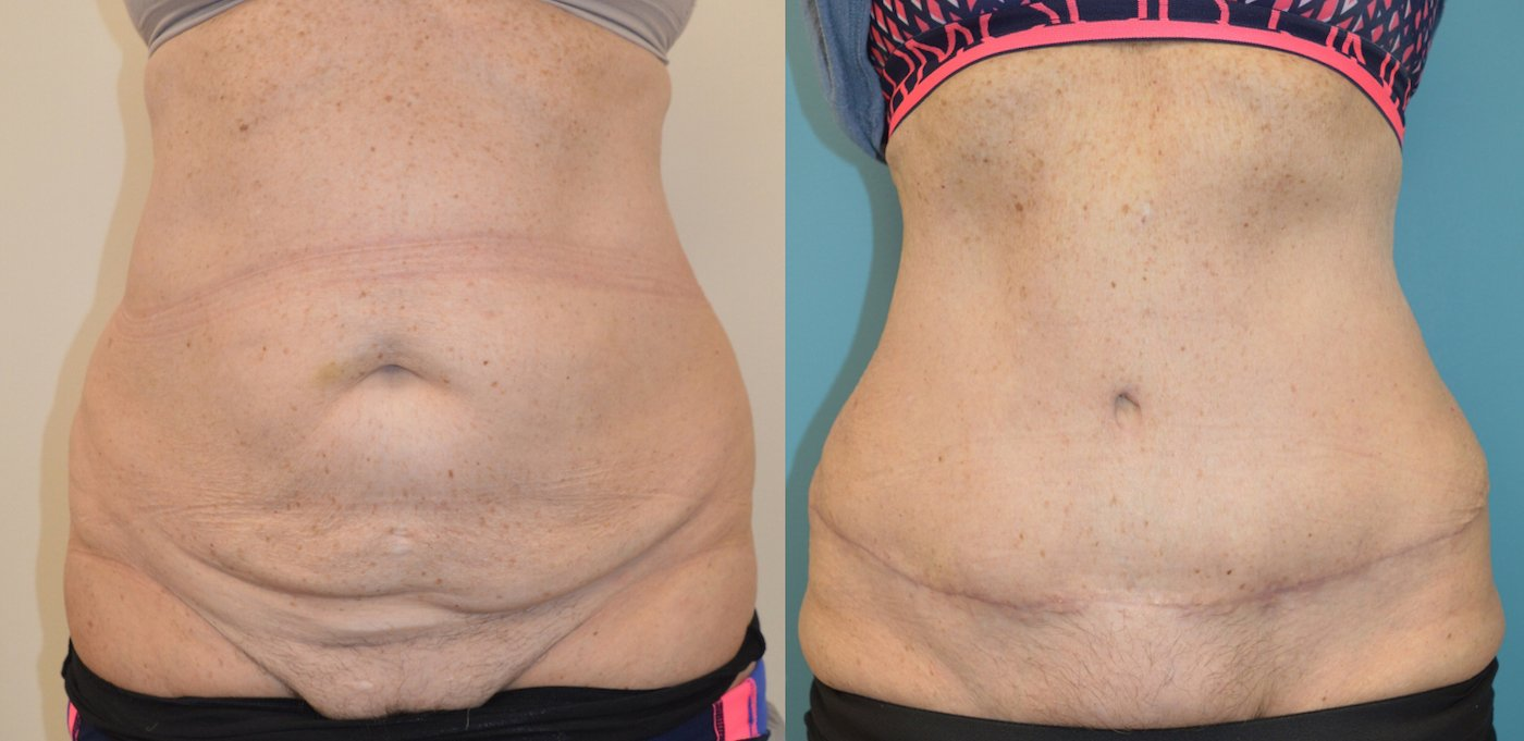 63-year-old 3 months after abdominoplasty, front view.