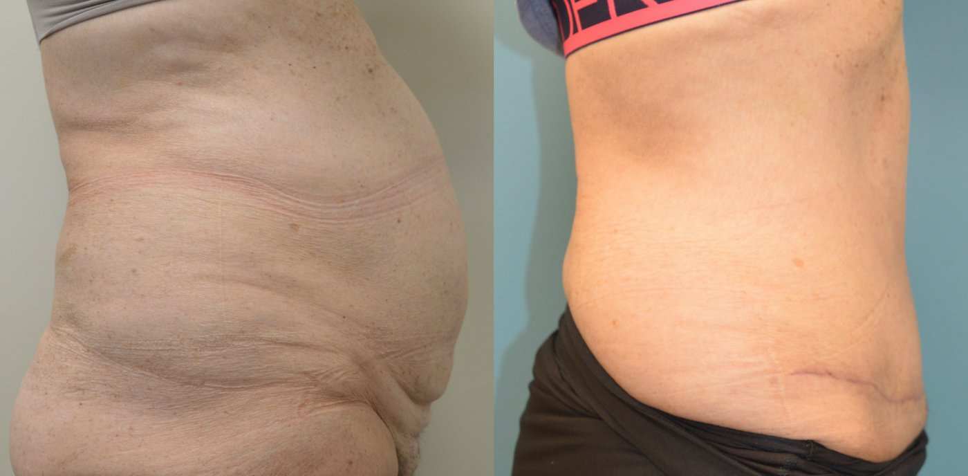 63-year-old 3 months after abdominoplasty, side view.