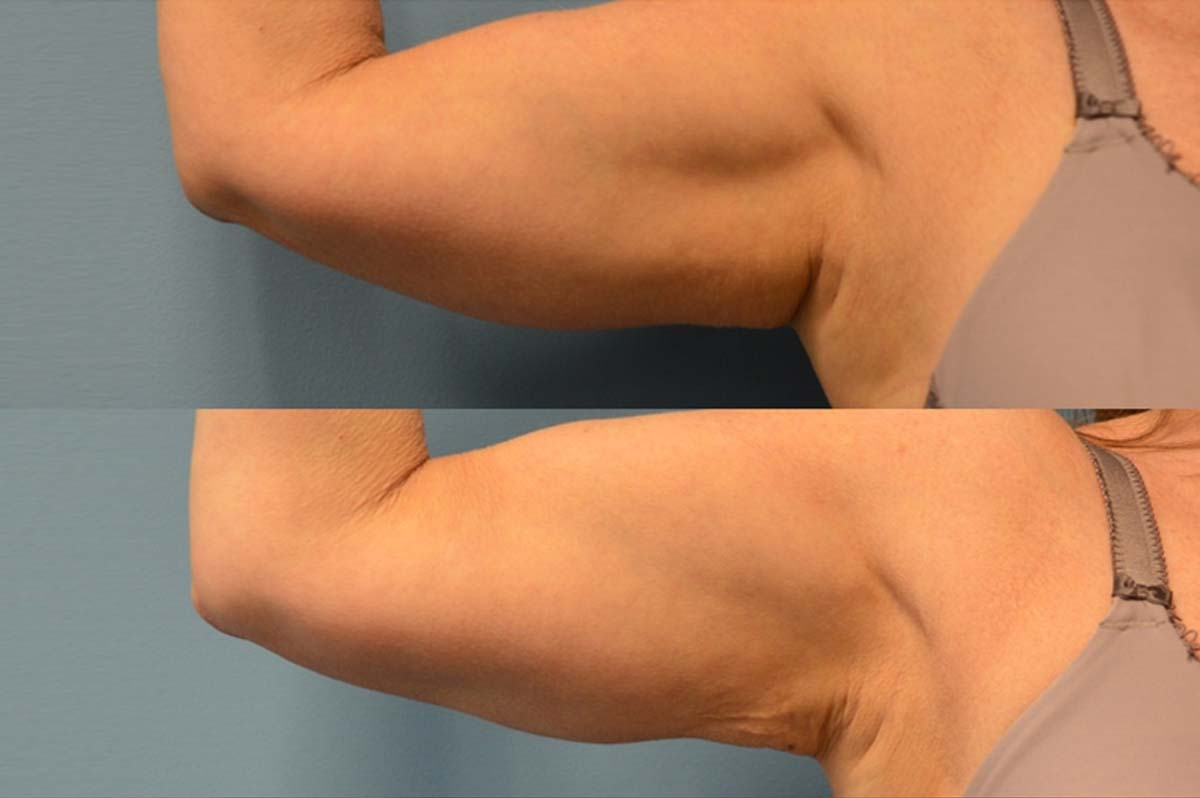 Bodytite and liposuction right arm front view