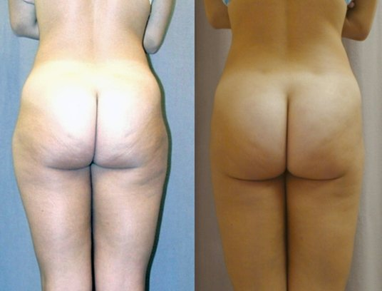 Liposuction hips and outer thighs