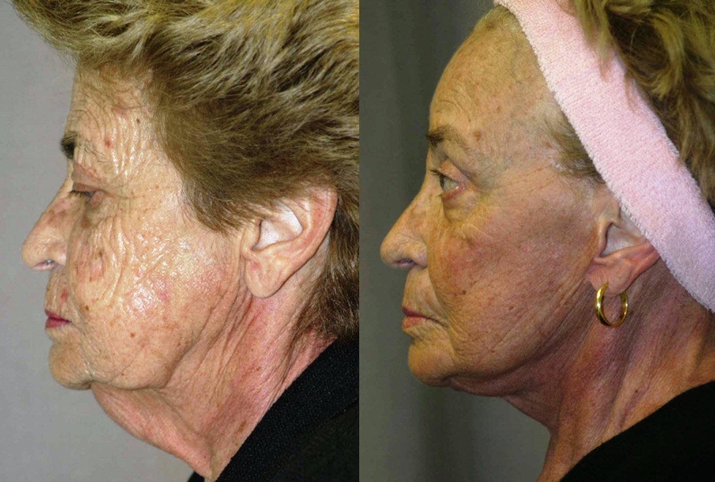 76 year old facelift, brow lift, upper and lower eye lift, one year follow-up, lateral view