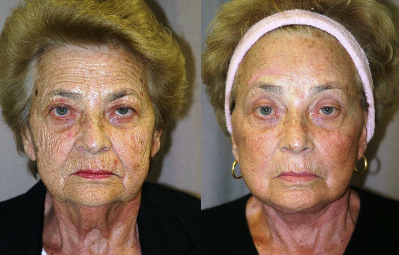 76 year old facelift, brow lift, upper and lower eye lift, one year follow-up front view