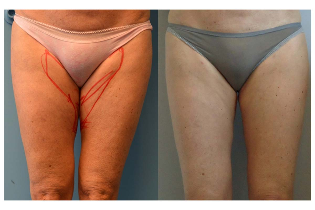 Inner thigh bodytite front view