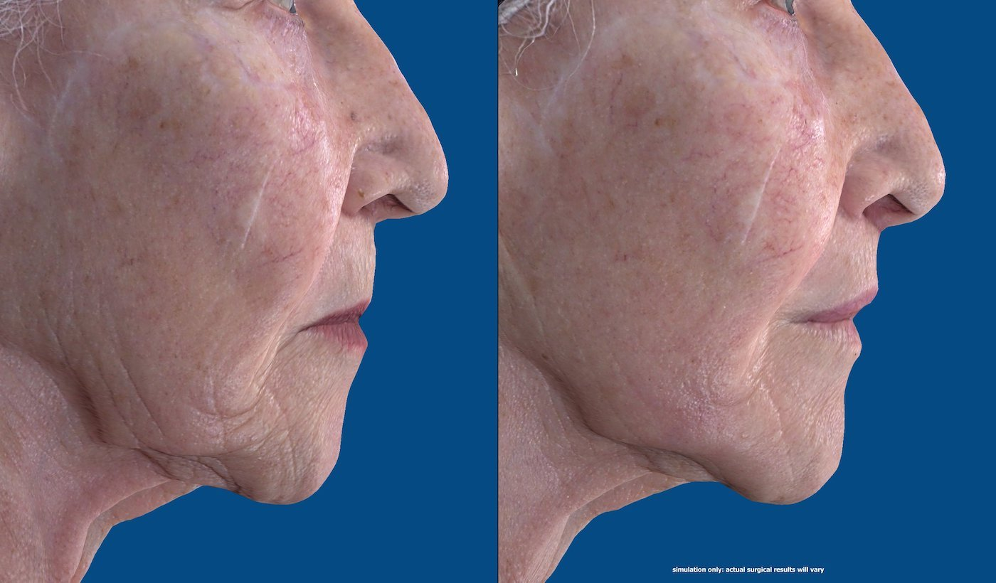 83-year-old upper lip shortening with fat injection to lips and peri-oral chemical peel. 29 days after surgery, side face