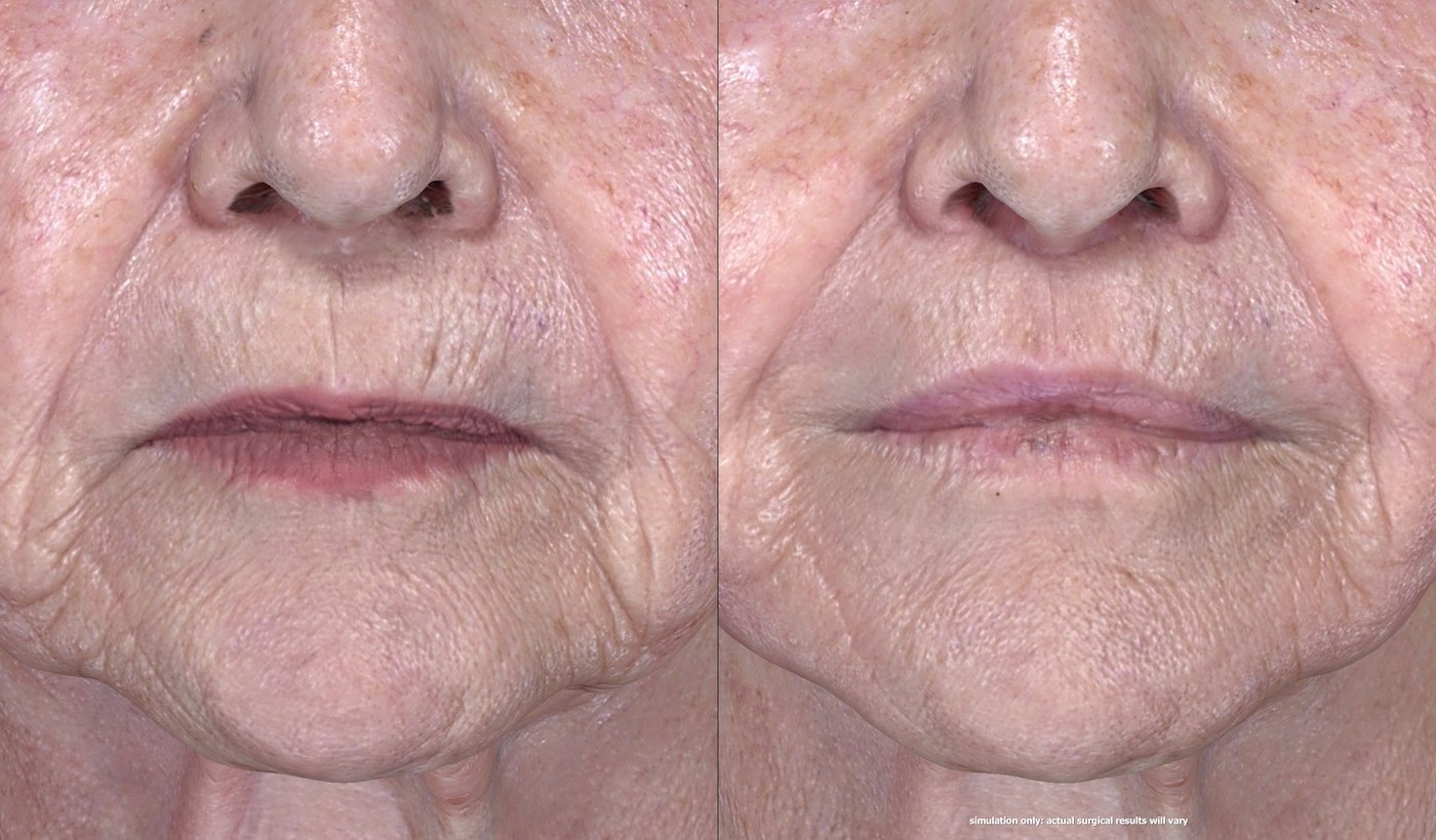 83-year-old upper lip shortening with fat injection to lips, peri-oral chemical peel. 29 days after surgery, front close-up