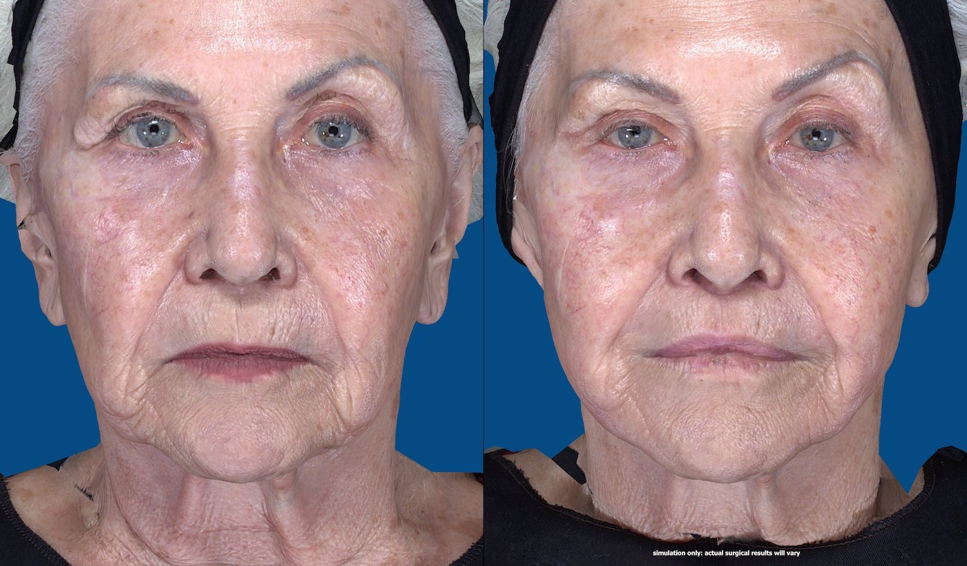 83-year-old upper lip shortening with fat injection to lips, peri-oral chemical peel. 29 days after surgery, front full face