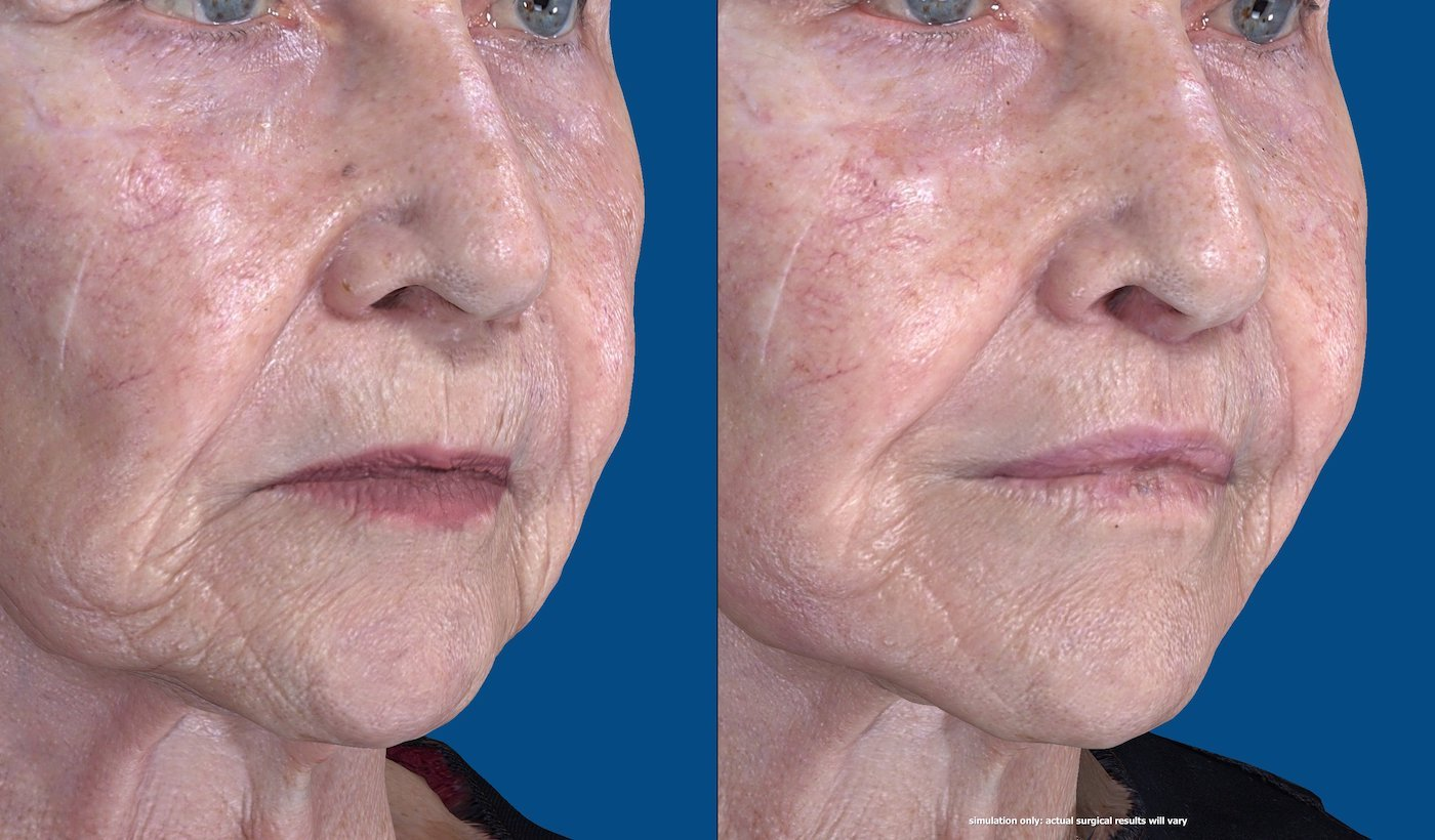 83-year-old upper lip shortening with fat injection to lips, peri-oral chemical peel. 29 days after surgery, right oblique face view