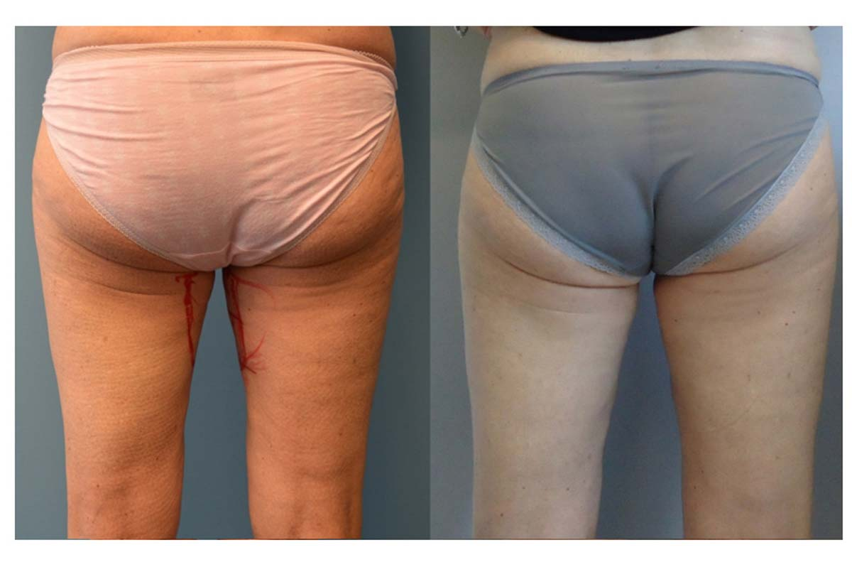 Bodytite and liposuction inner thighs back view