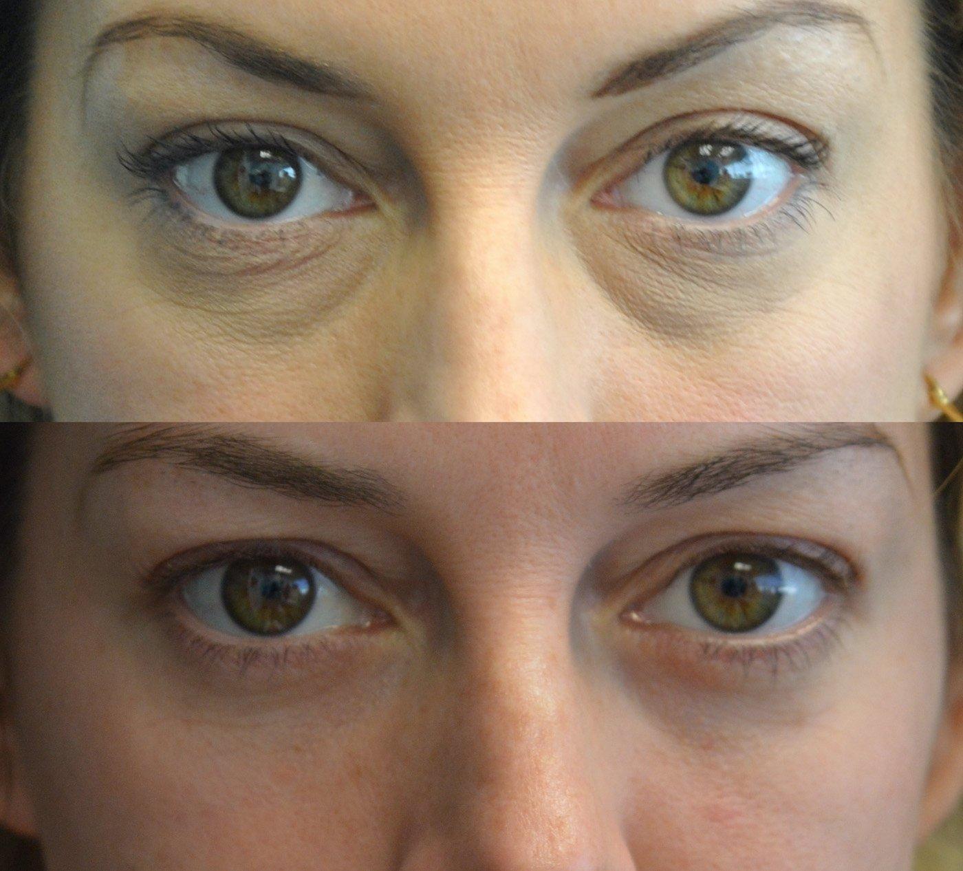 Blepharoplasty lower transconjunctival with peel lower eyelids
