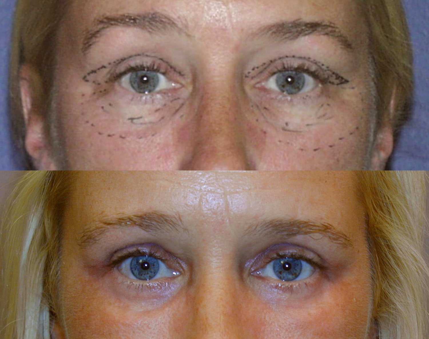 Blepharoplasty upper and lower trans-conjunctival with peel of lower lids