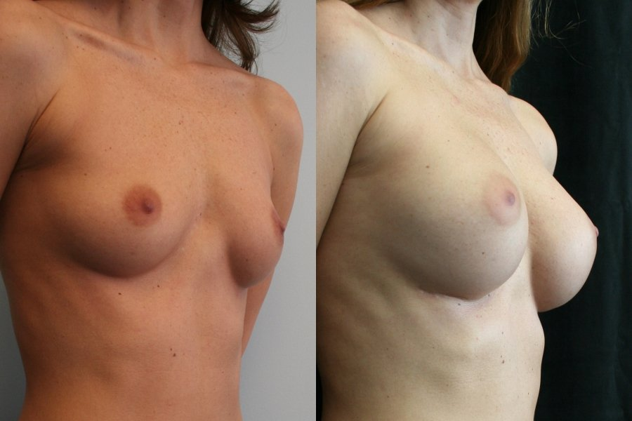 Breast Augmentation Mammaplasty (BAM) 5 years after surgery  infra-mammary crease incision right oblique view