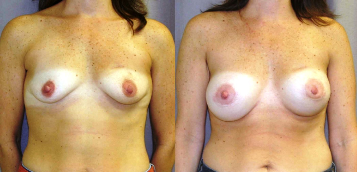 Breast Augmentation Mammaplasty (BAM) after lumpectomy left and DXT, style 20 R 350, L 325, front view