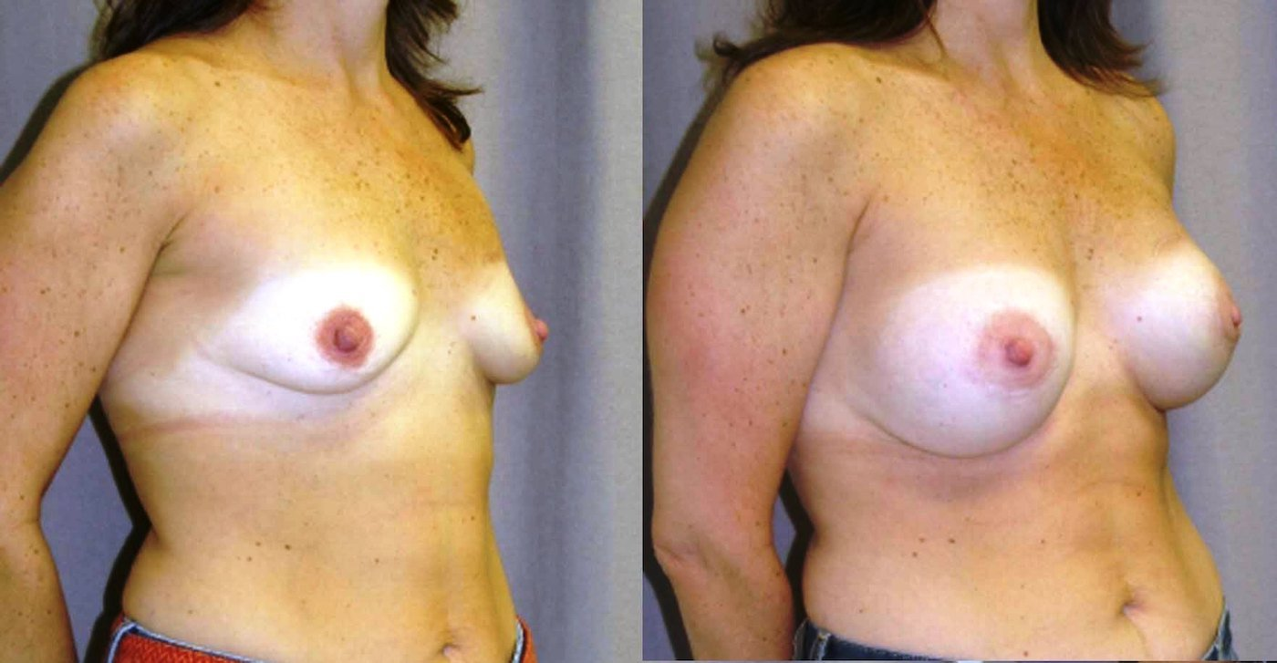 Breast Augmentation Mammaplasty (BAM) after lumpectomy left and DXT, style 20 R 350, L 325, right oblique view