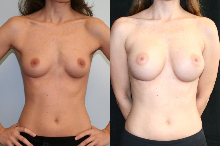 Breast Augmentation Mammaplasty (BAM)  infra-mammary crease incision front view