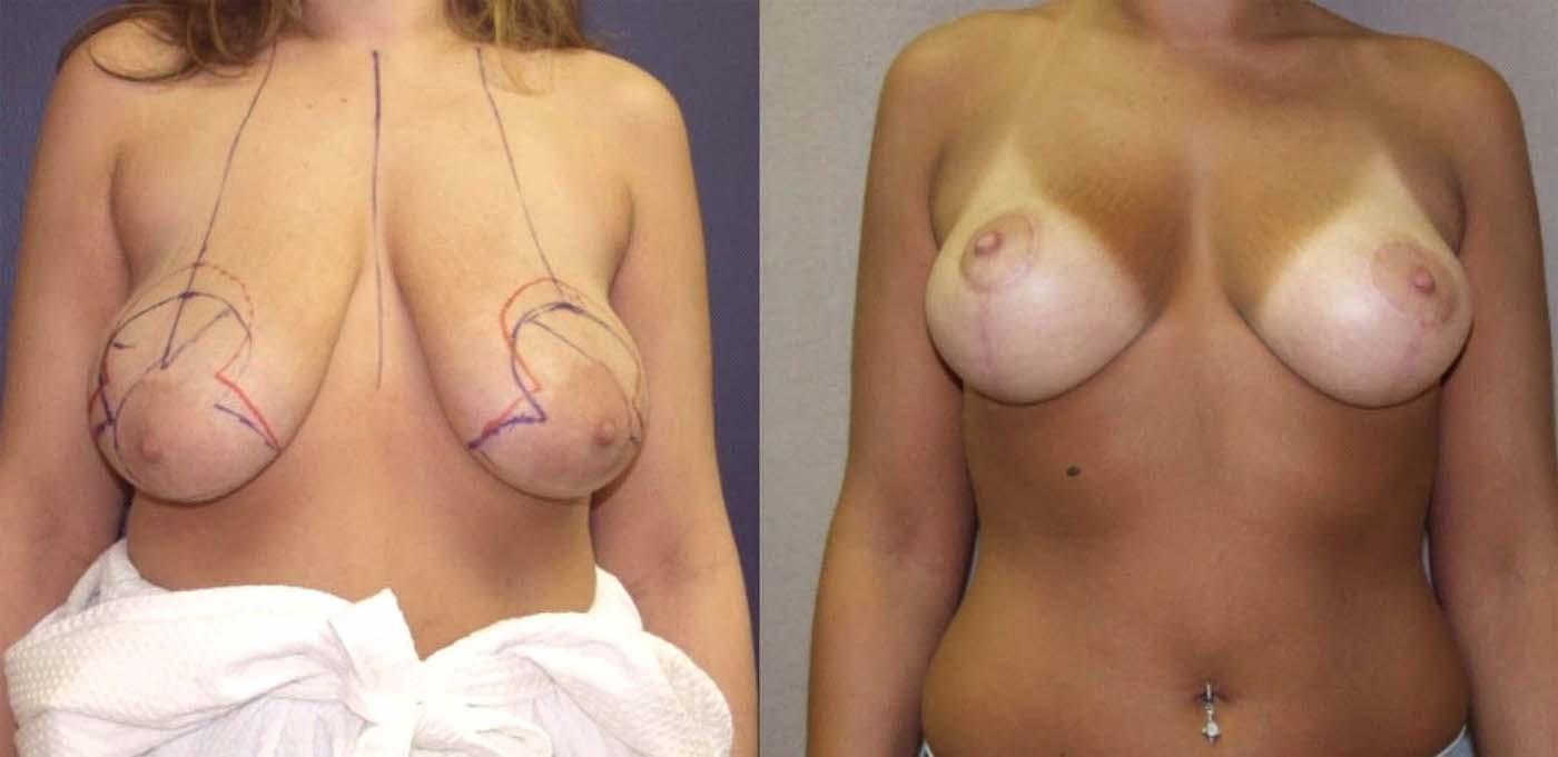 Breast Auto augmentation patient front view