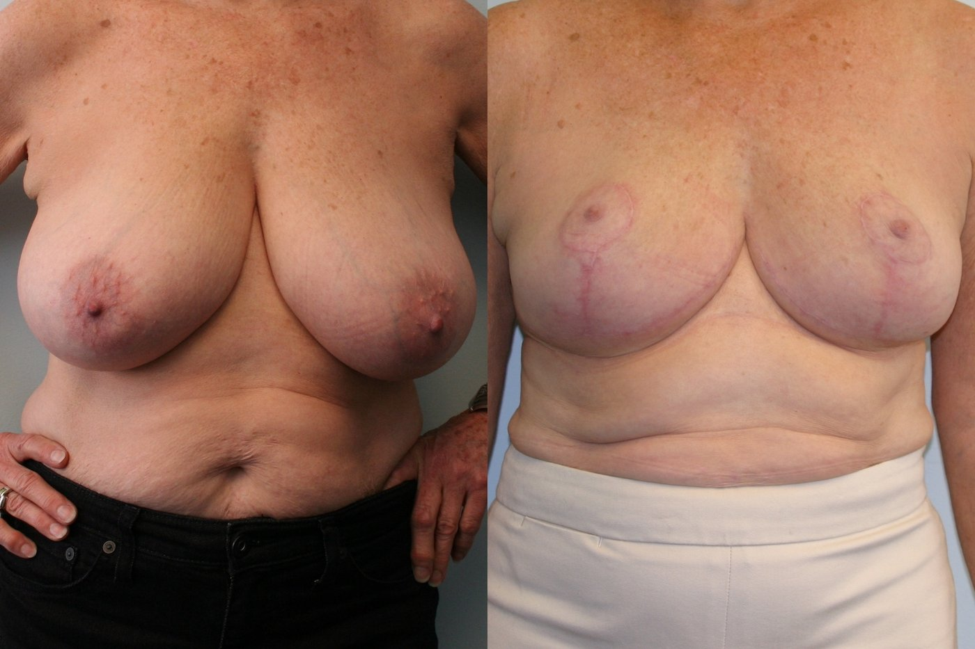 Breast Auto augmentation front view