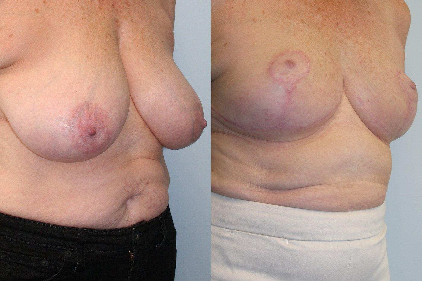 Breast Auto augmentation oblique view