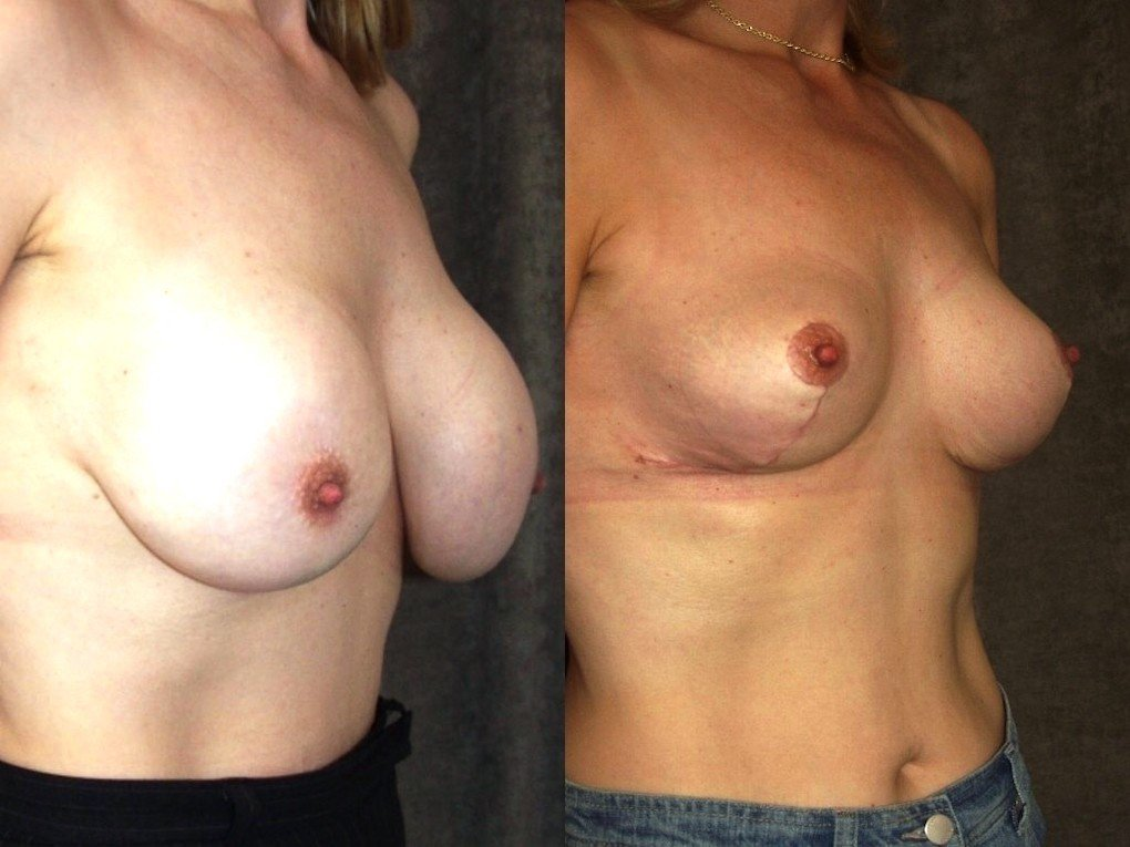 Breast Auto augmentation with removal of implants oblique view
