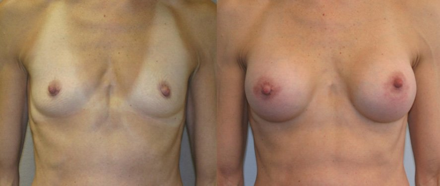 Breast augmentation 250 cc Mentor round textured gel HP one year follow-up front