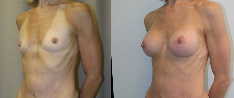 Breast augmentation 250 cc Mentor round textured gel HP peri-areolar incision one year follow-up oblique