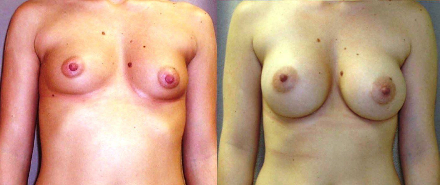 Breast augmentation, 360 cc style 68 saline, 4 year follow-up, front view