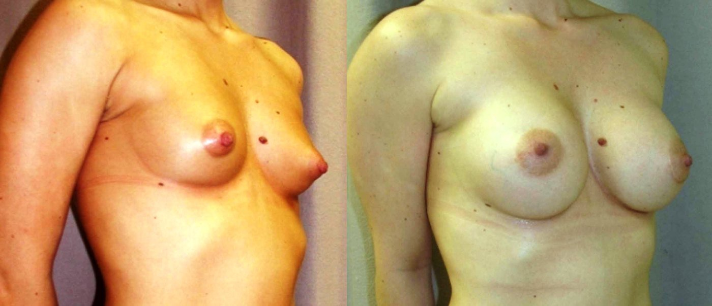 Breast augmentation, 360 cc style 68 saline, 4 year follow-up, oblique view
