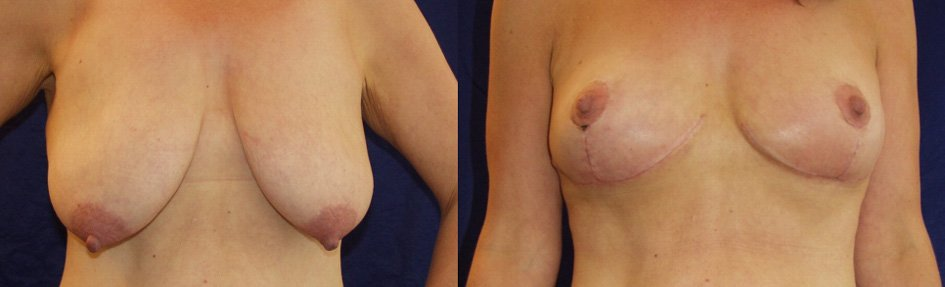 Breast mastopexy 4 weeks after surgery using inferior pedicle technique front view