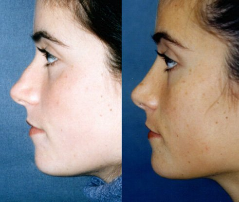 Broad nose with bump after bony fracture side view