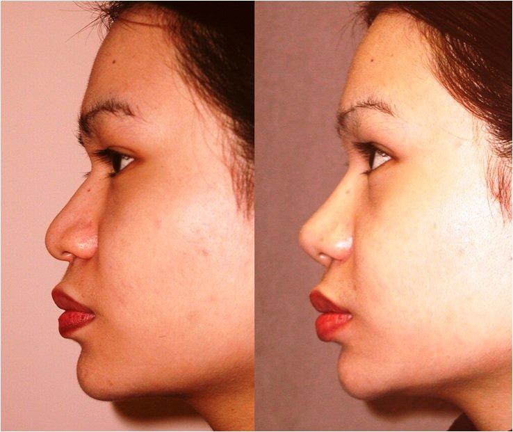 Cartilage graft to dorsum and tip side view