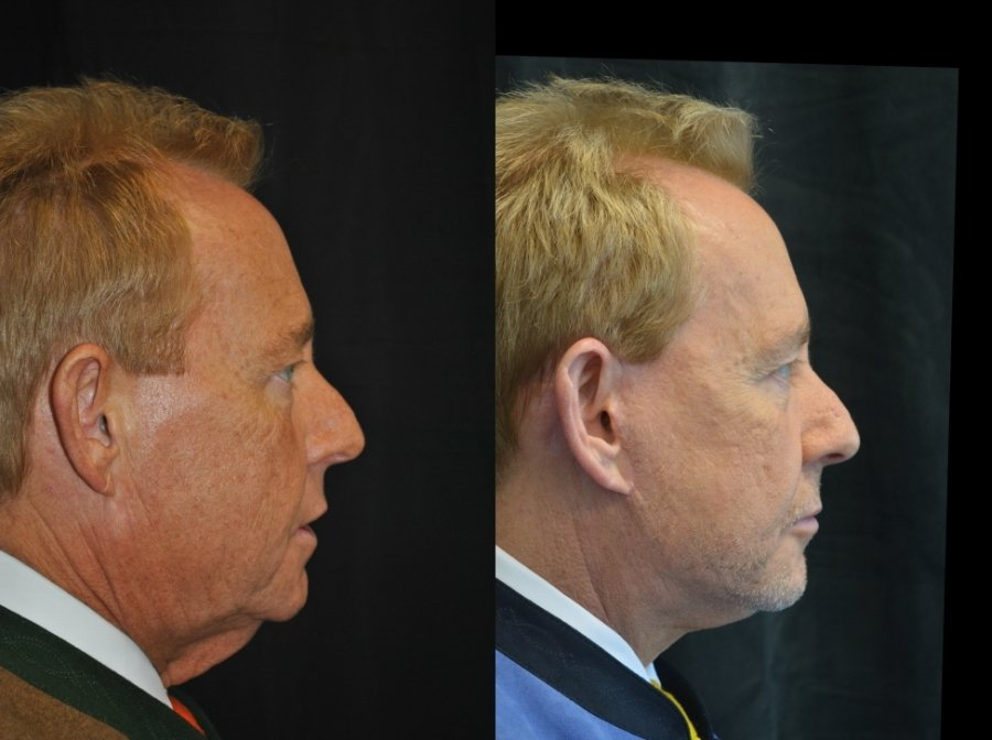 Facelift and submental platysmaplasty side view