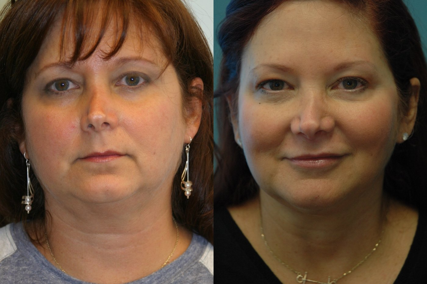 Facetite and liposuction of neck and jowls front view
