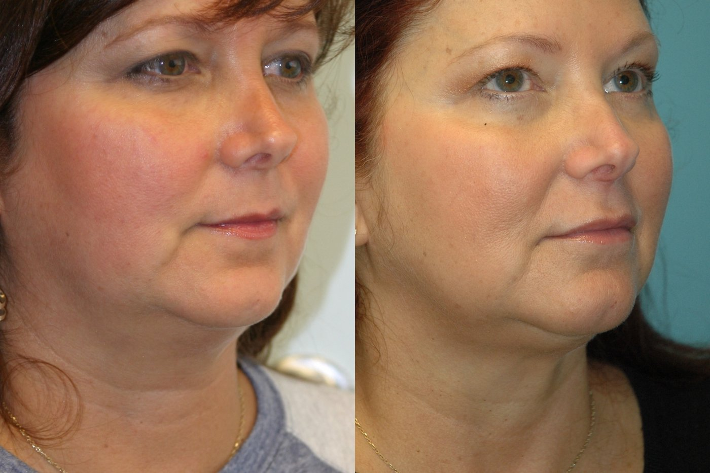 Facetite and liposuction of neck and jowls oblique view