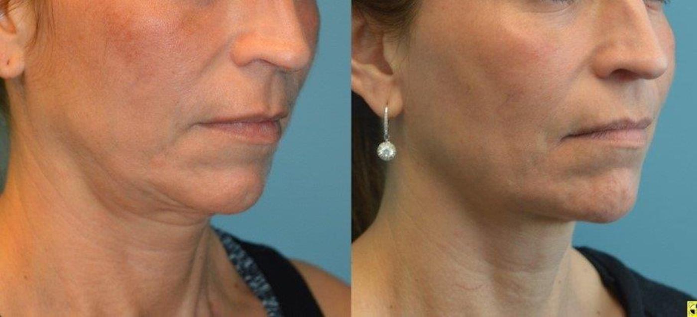 Facetite cheeks and neck oblique view